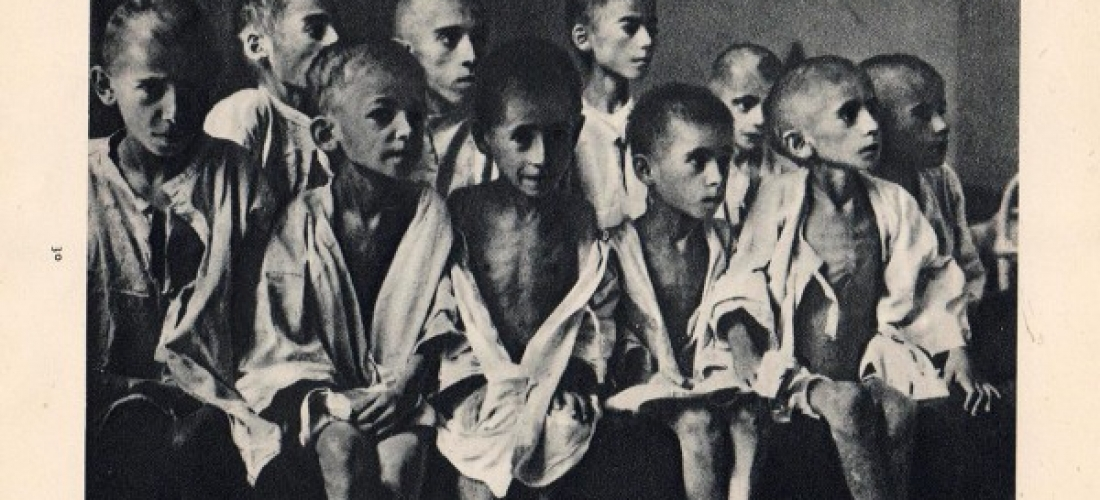 Παιδιά σκελετωμένα από την πείνα